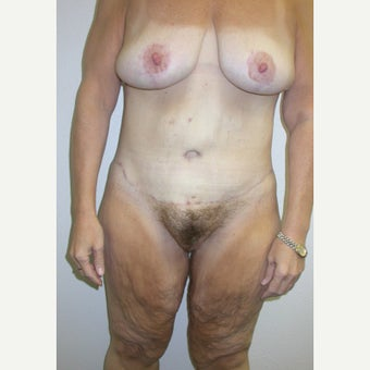 55-64 year old woman with Body Lift after 1970542