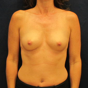45-54 year old woman treated with Breast Implants before 3301104