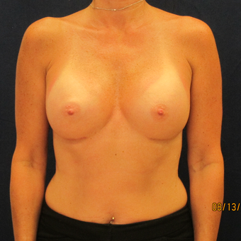 45-54 year old woman treated with Breast Implants after 3301104