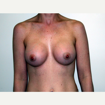 35-44 year old woman treated with Breast Augmentation after 3378452