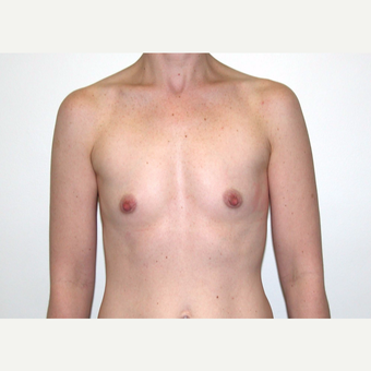 35-44 year old woman treated with Breast Augmentation before 3378452