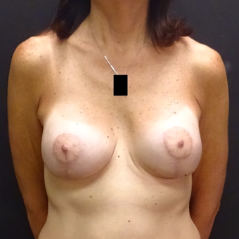 45-54 year old woman treated with Breast Augmentation after 3246162