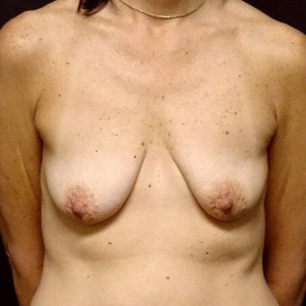 45-54 year old woman treated with Breast Augmentation before 3246162
