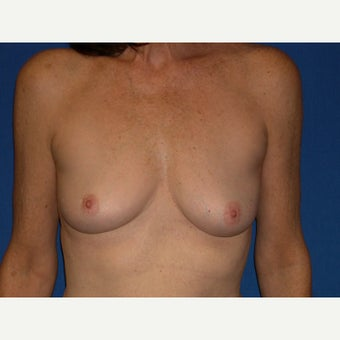 61 year old woman treated with Breast Augmentation before 1642481