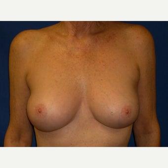 61 year old woman treated with Breast Augmentation after 1642481