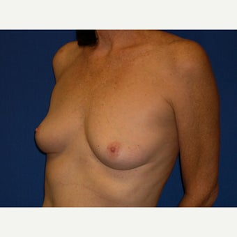 61 year old woman treated with Breast Augmentation 1642481