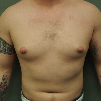 18-24 year old man treated with Male Breast Reduction before 3743528