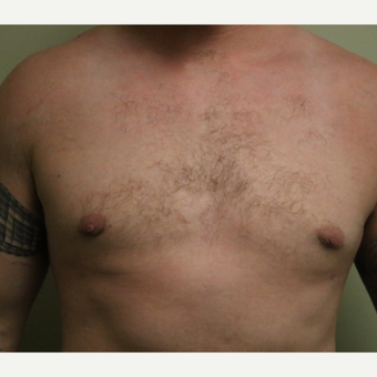 18-24 year old man treated with Male Breast Reduction after 3743528