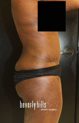 Tummy Tuck after 1546390