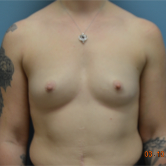 35-44 year old woman treated with Breast Augmentation before 3170615