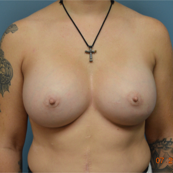 35-44 year old woman treated with Breast Augmentation after 3170615