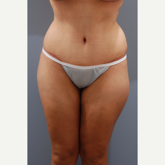 35-44 year old woman treated with Tummy Tuck after 3584070
