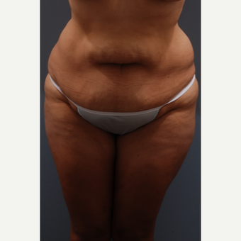 35-44 year old woman treated with Tummy Tuck before 3584070