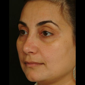 35-44 year old woman treated for Eye Bags Treatment