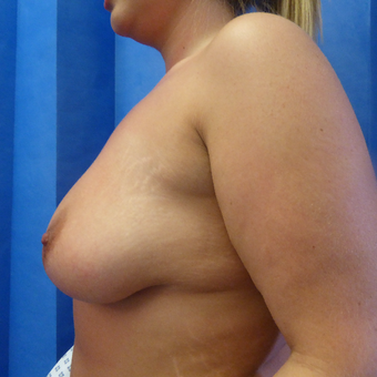 35-44 year old woman treated with Breast Lift before 3428229