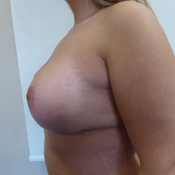 35-44 year old woman treated with Breast Lift after 3428229