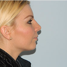 35-44 year old woman treated with Rhinoplasty after 3459322