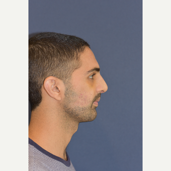 18-24 year old man treated with Rhinoplasty after 3487815