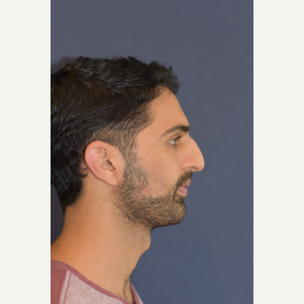 18-24 year old man treated with Rhinoplasty before 3487815