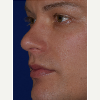 32 year old man treated with Juvederm VOLBELLA before 3744394