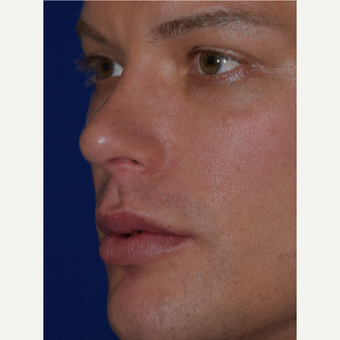 32 year old man treated with Juvederm VOLBELLA after 3744394
