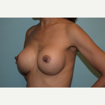 Transaxillary Subpectoral Breast Augmentation with Silicone Implants after 3446701