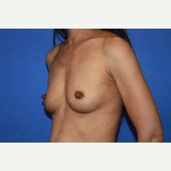 Transaxillary Subpectoral Breast Augmentation with Silicone Implants before 3446701