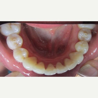 25-34 year old woman treated with Invisalign after 2323456