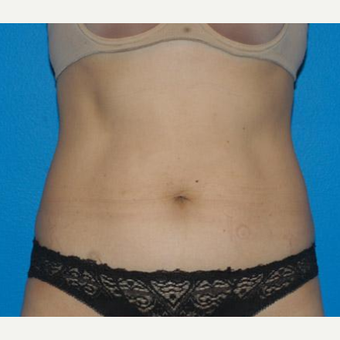 Tummy Tuck before 3208546