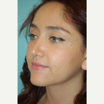 18-24 year old woman treated with Rhinoplasty 1650833