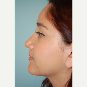 18-24 year old woman treated with Rhinoplasty after 1650833