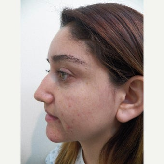 18-24 year old woman treated with Rhinoplasty before 1650833