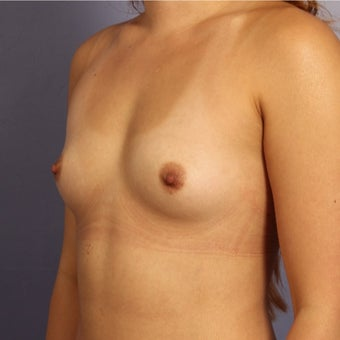 Late 20s female with Sientra Breast Implants before 1843095