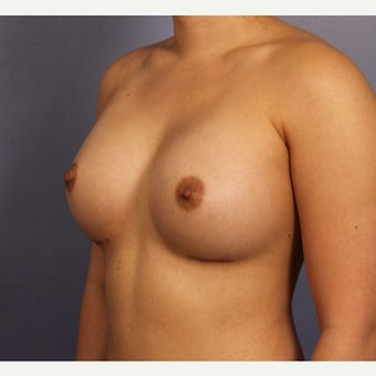 Late 20s female with Sientra Breast Implants after 1843095