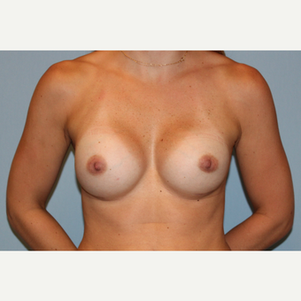 25-34 year old woman treated with Breast Augmentation after 3570046