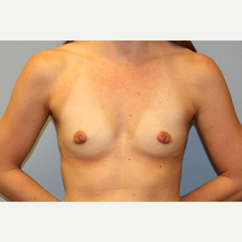 25-34 year old woman treated with Breast Augmentation before 3570046