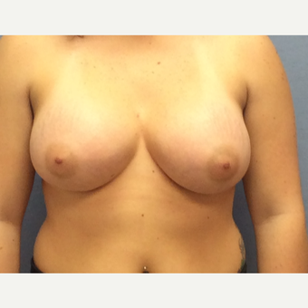 25-34 year old woman treated with Breast Augmentation after 3377421