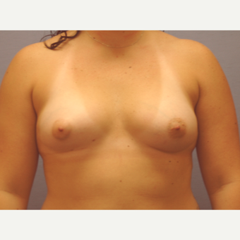 25-34 year old woman treated with Breast Augmentation before 3377421