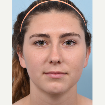 17 year old woman treated with rhinoplasty and open septoplasty after soccer injury before 3298527