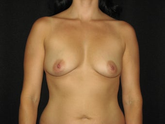 600 cc saline breast implants before 700256