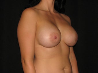 600 cc saline breast implants 700256