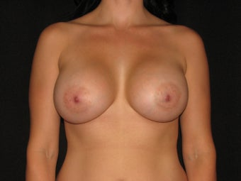600 cc saline breast implants after 700256