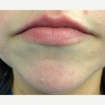 18-24 year old woman treated with Restylane before 1619479