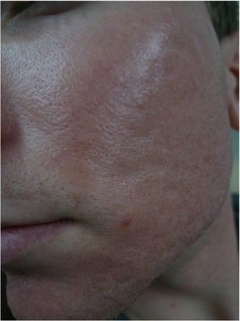 acne scars treated with Juvederm Volbella after 1423067