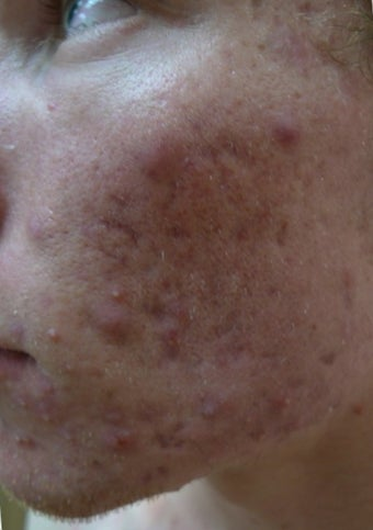 acne scars treated with Juvederm Volbella before 1423067