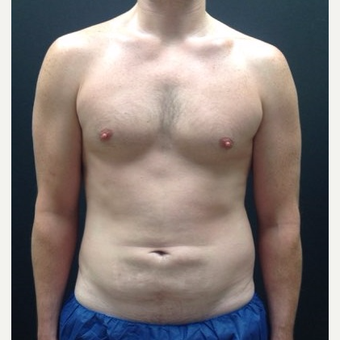 35-44 year old man treated with Liposuction before 3768870