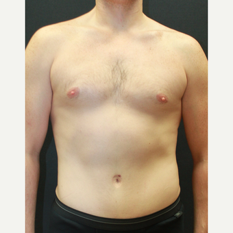 35-44 year old man treated with Liposuction after 3768870