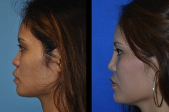 Asian Rhinoplasty after 1239646