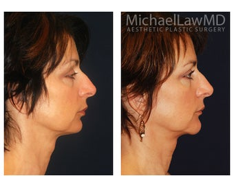 Chin Liposuction before 1271815