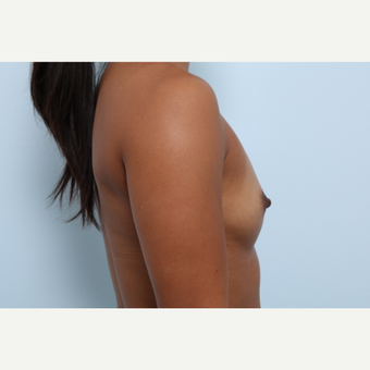 Breast Augmentation before 3459933